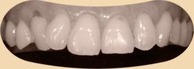 牙齦萎縮是牙齒敏感的主因-診療前