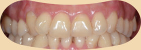 牙齦萎縮是牙齒敏感的主因-診療後
