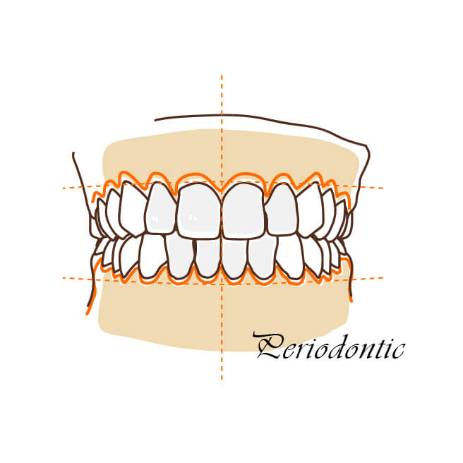 牙齦美學-wecare康世維牙醫診所首頁