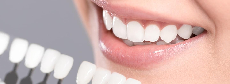 康世維牙藝美學-牙齒美白