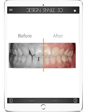 數位微笑設計 DIGITAL SMILE DESIGN-模擬預見