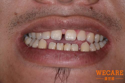 矯正正顎手術前牙齒狀況-陳元皓案例