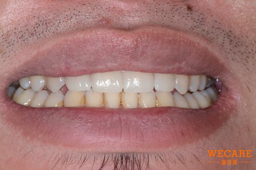 矯正正顎手術後牙齒狀況-陳元皓案例