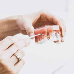 矯正牙齒到底要不要拔牙?拔牙議題「大解密」示意圖