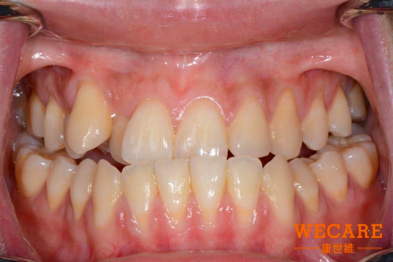 張惠勝矯正案例-使用DSD數位微笑設計診療