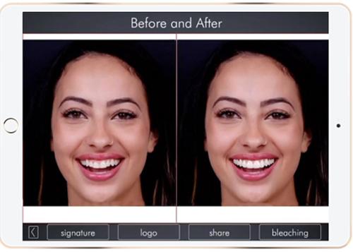 精準矯正牙齒,設計最適合的仿生牙周與美學假牙-DSD數位微笑設計使用前與使用後比較圖