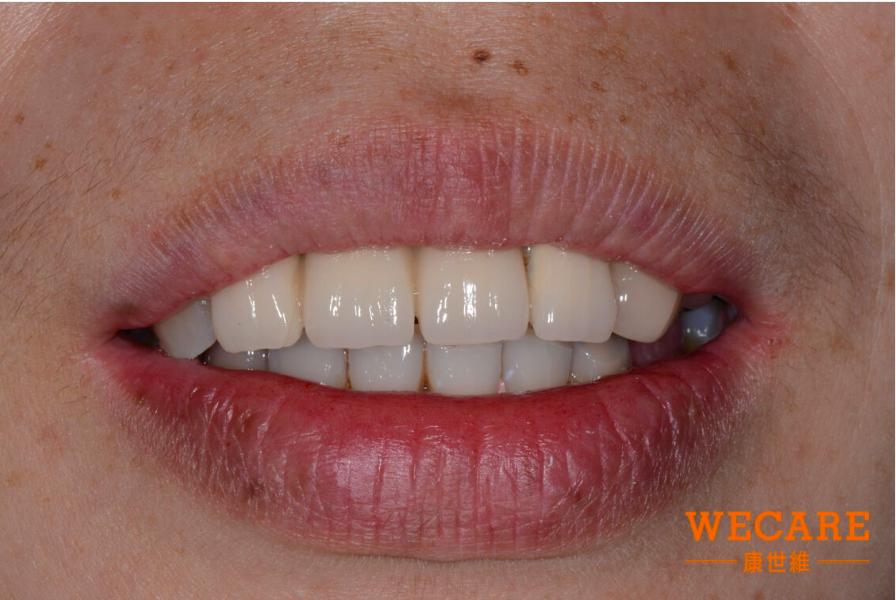 WECARE康世維全口重建技術幫助胡小姐改善牙齒問題
