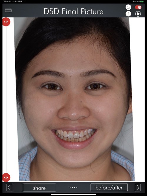 DSD數位微笑設計實際案例圖一