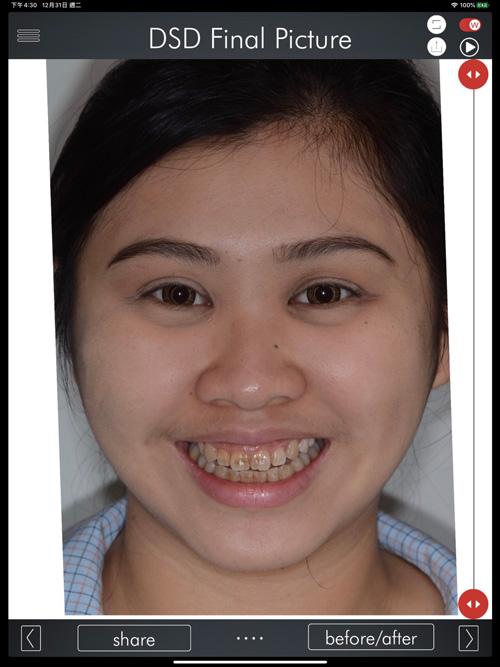 DSD數位微笑設計實際案例圖二