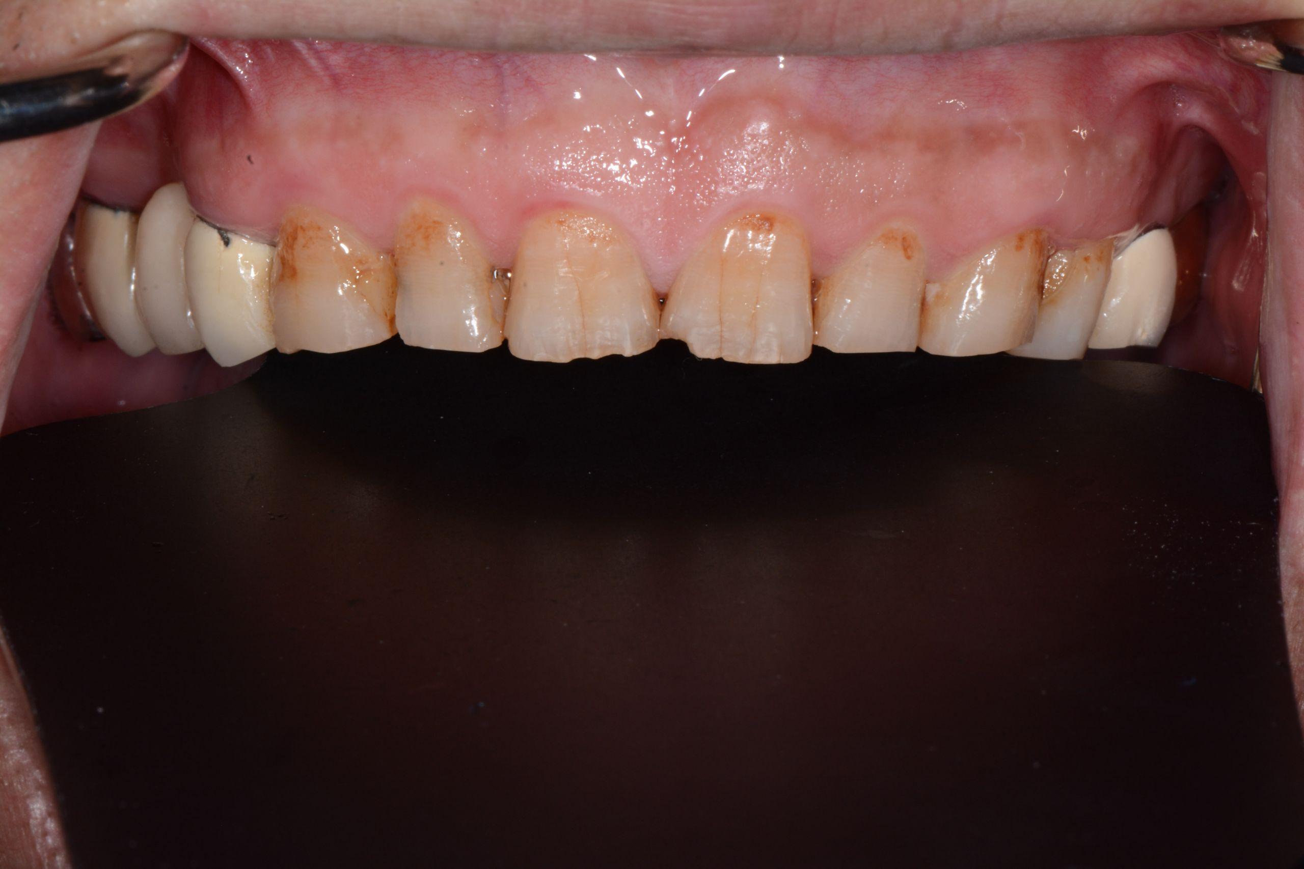 牙齦美學案例-王志宏術前