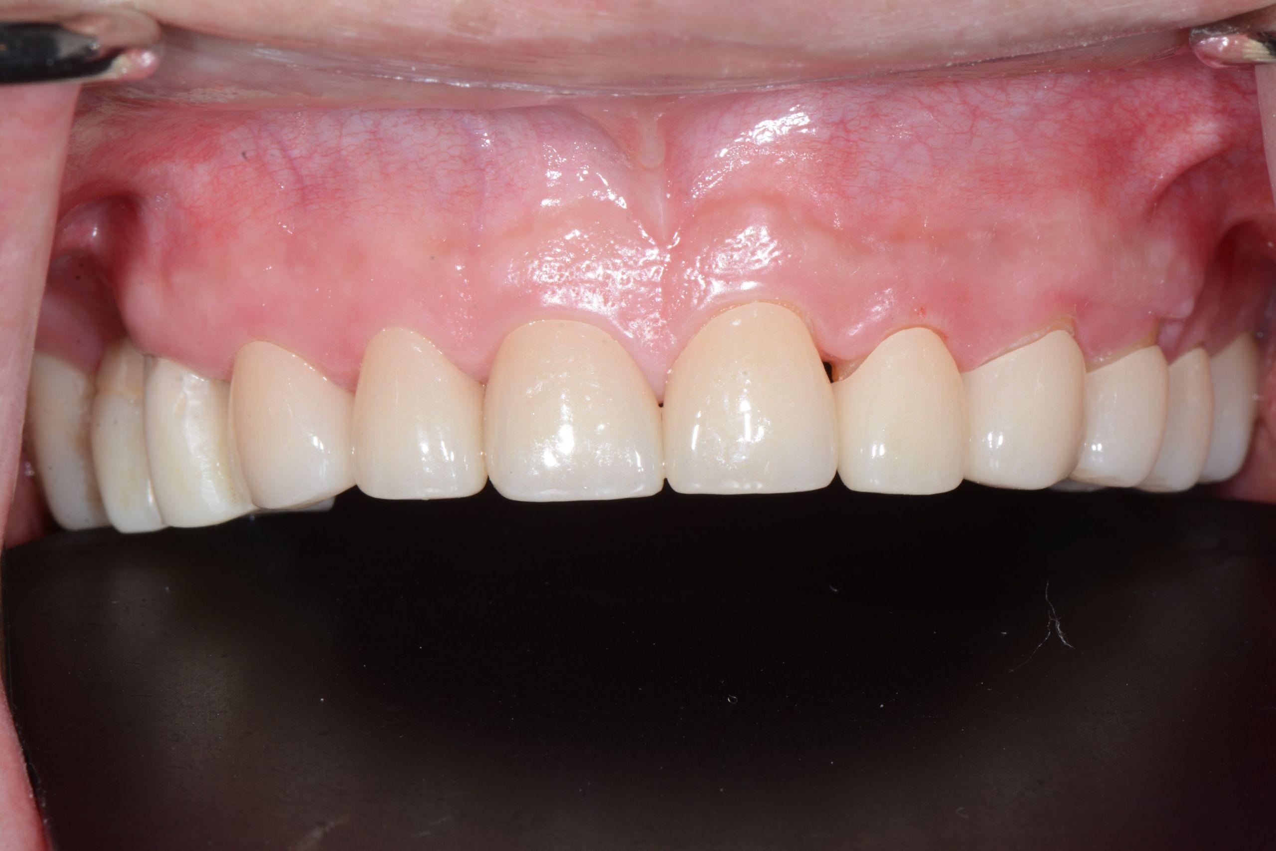 牙齦美學案例-王志宏術後