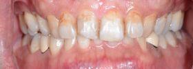 牙齦美學案例-王維詳術前
