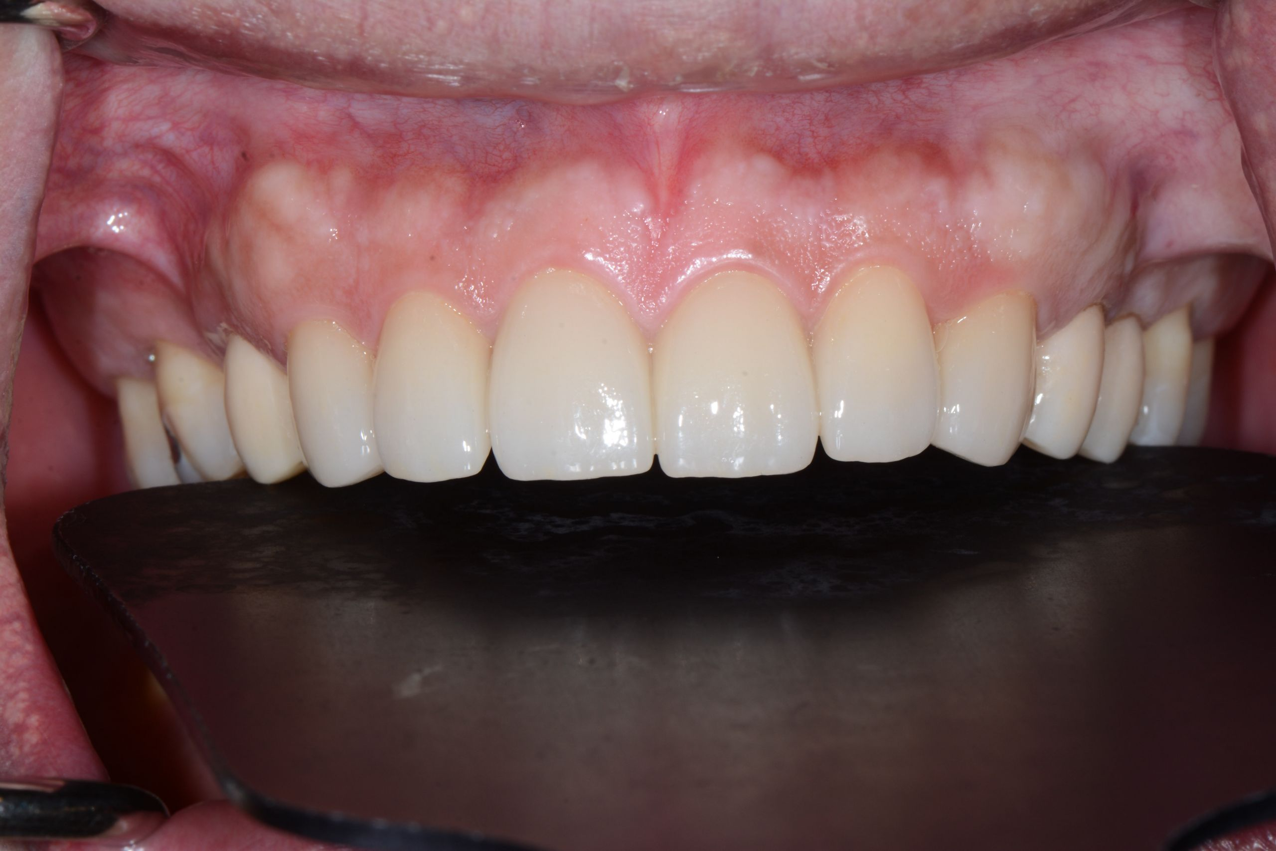 牙齦美學案例-王維詳術後