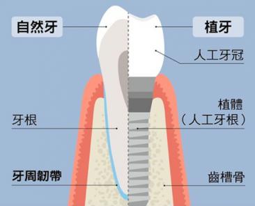 我可以植牙嗎?文章示意圖