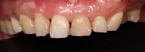 牙藝美學樹脂貼片案例-洪小姐診療前