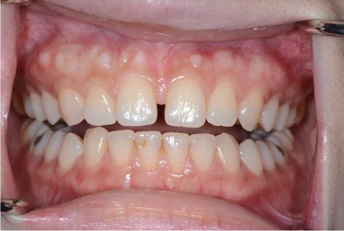 牙藝美學門牙貼片案例-某小姐診療前