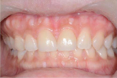 牙藝美學門牙貼片案例-某小姐診療後