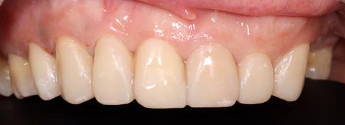 牙藝美學樹脂貼片案例-洪小姐診療後