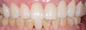 植牙美學案例-黃啟賢全牙術後