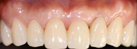 牙齦美學案例-黃啟賢術後