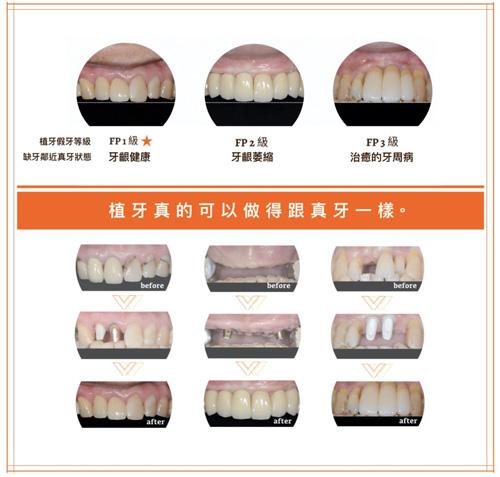 植牙真的可以做得跟真牙一樣真嗎?Leanor-植牙假牙二類5級-圖3