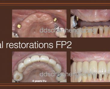 固定式植牙2級假牙-阿嬤感覺變年輕了!「精準訂製、植牙療程」全面提升生活品質