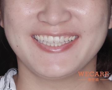 在植牙之前,以補骨等療程,優先恢復缺牙區的齒槽骨健康,打造良好的骨基礎,畢竟「口腔多健康,植牙成功機率就有多高!」。在臼齒區成功植牙,咬合功能恢復健康,即可邁入下一階段。