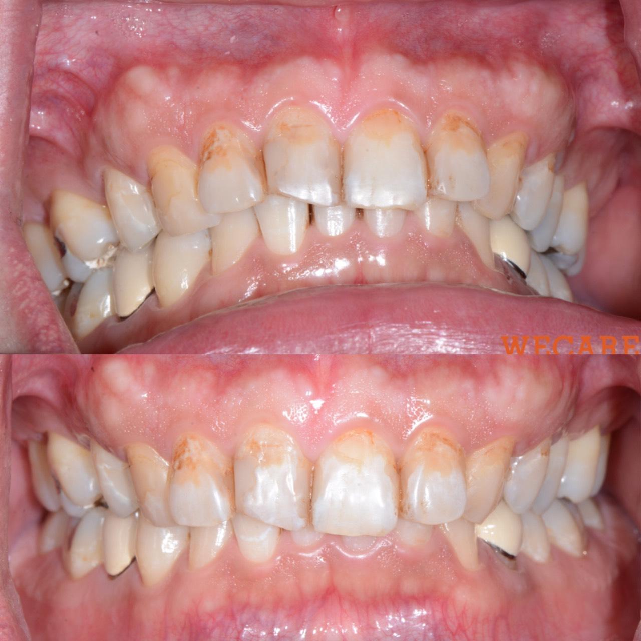 teethbefore Orthodontics
