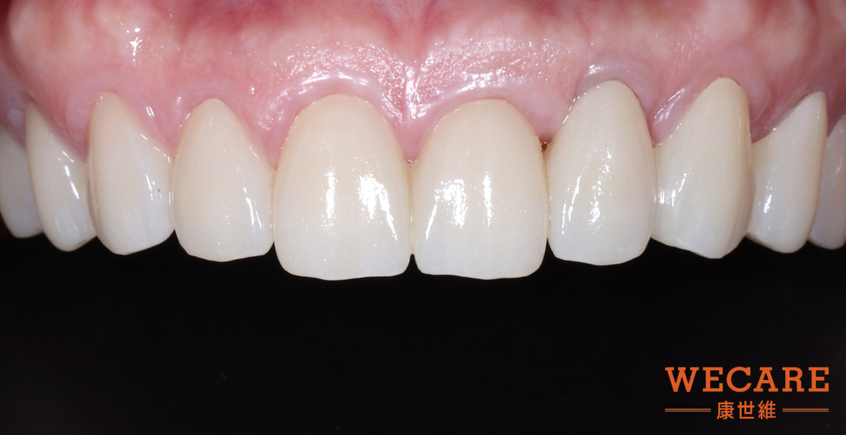 after Periodontal disease