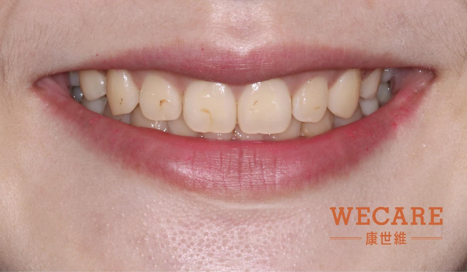 治療前: 齒色不均